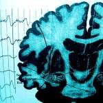 La epilepsia como comorbilidad en el autismo