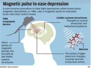 tms-depression