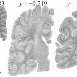 Parches de corteza malformada en cerebros de individuos con autismo