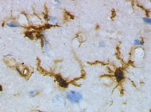 Microglía. Foto: Dominio público