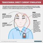 La estimulacion transcraneal por corriente directa (ETCD) y el autismo
