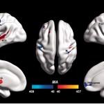 Se encuentran diferencias en el cerebro de las personas con autismo
