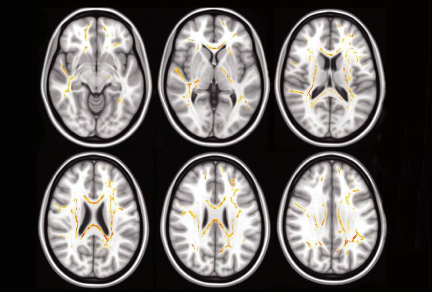 Se Encuentran Cambios Comunes En El Cerebro De Nios Con