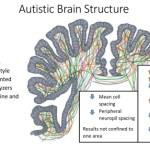 Dislexia y autismo: perfiles cognitivos en los extremos del mismo espectro