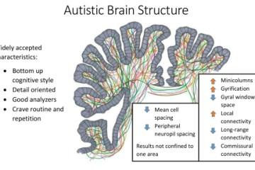 Resultado de imagen de Dislexia y autismo