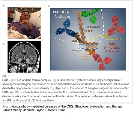 ezgif 4 d48221c7e97f - Antibodies-of-autoimmune-encephalitis