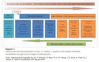 ezgif 5 8f6a0d4c1654 - anti-NMDAr Encephalitis