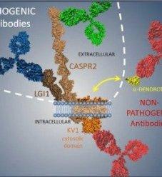 image 54 300x248 - Autoimmune Encephalitis Handouts and Fact Sheets