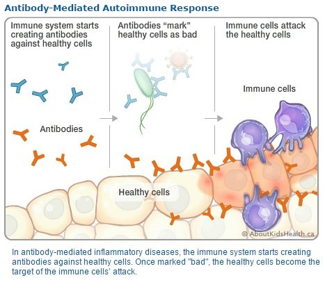 antibody_mediated Autoimmune encephalitis