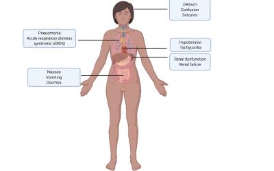 Cytokine Storm: A Detrimental Overreaction