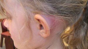 8 Causas y tratamientos para el dolor agudo detrás de la ...