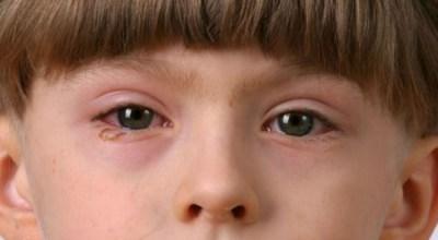 circulos-rojos-alrededor-de-los-ojos