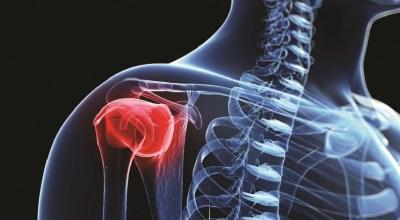 el-cancer-de-hueso-causa-la-prevencion-de-los-sintomas