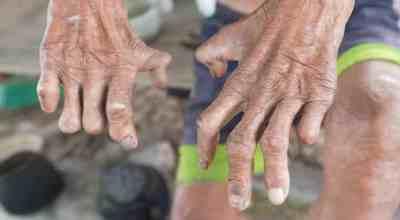 lepra-causa-sintomas-tratamientos-prevencion