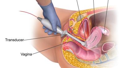 los-polipos-uterinos-causan-sintomas-y-tratamiento