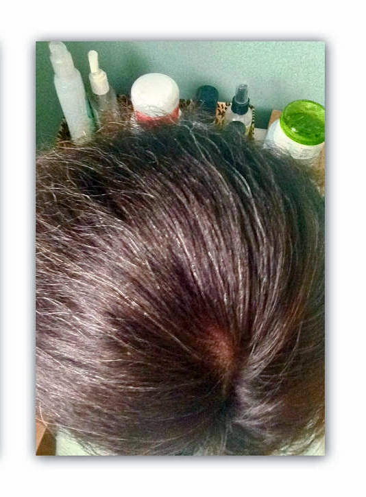 hair loss progress