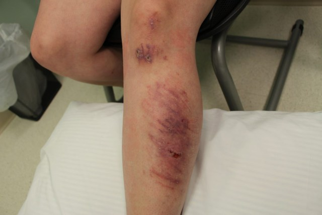 avalon-laser-health-road-rash-to-recovery-before