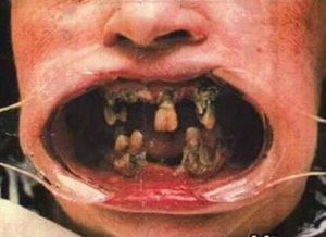 rotten-teeth1