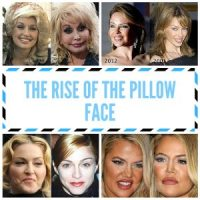 The Pillow Face Look Caused by Too Much Injectable ...