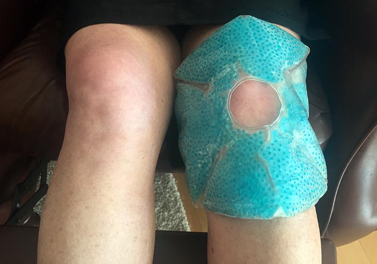 Icing your knees with a product such as TheraPearl Knee Wrap will go a very long way towards preventing cycling knee pain. 7 best ways to prevent cycling knee pain