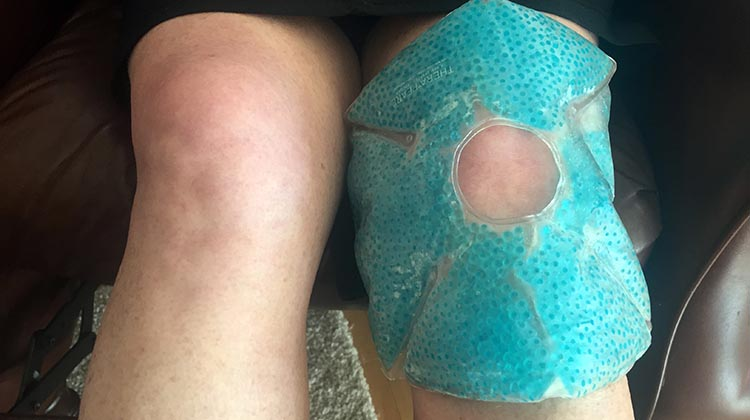 How to prevent cycling knee pain with proactive icing using a therapearl knee wrap pad