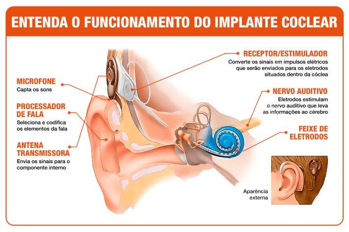 funcionamento-implante-coclear