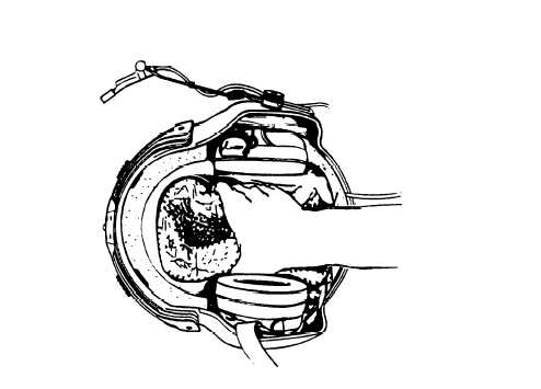 i. Replacing Lining, helmet, shock (TPL)