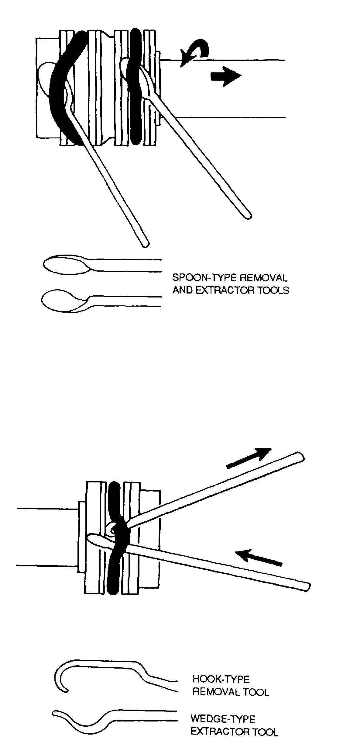 Figure 4-65. External O-Ring Removal (Spoon- Type Tools)