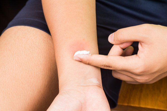 Man putting calamine lotion on bug bite