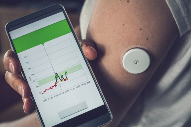 person's hand holding phone with glucose graph near continuous glucose monitoring sensor placed in upper arm