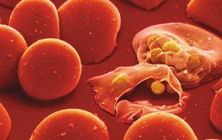 malaria casi autoctoni 2017