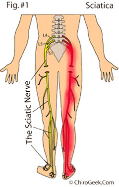 illustration of sciatic nerve