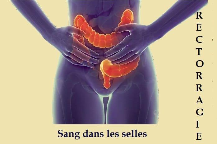 Sang dans les selles,10 causes : diarrhée, cancer, gastro, polype…