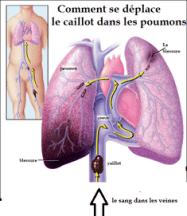 Embolie pulmonaire-Schema des poumons atteints
