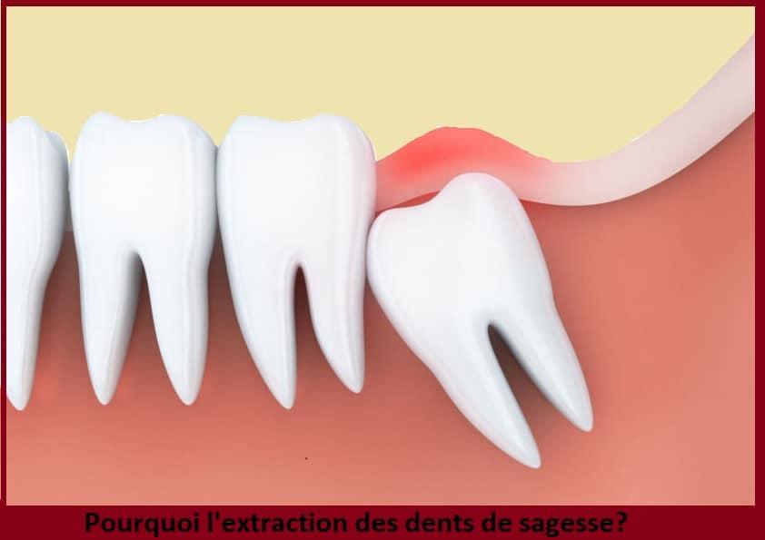 Dents de sagesse: extraction, douleur, age, gonflement & après opération