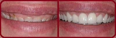 une facette dentaire avant après