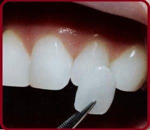 Faire une facette dentaire