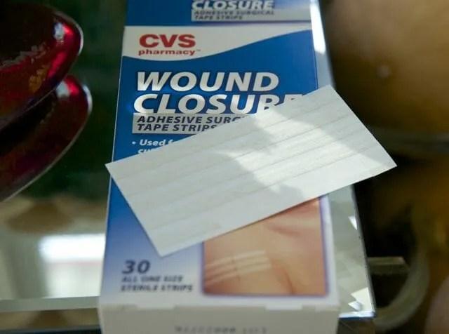wound strips 1