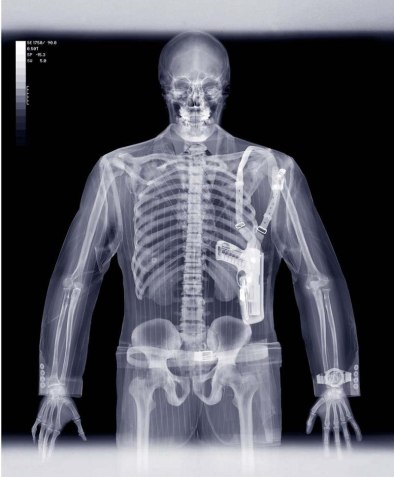 Рентген-фото