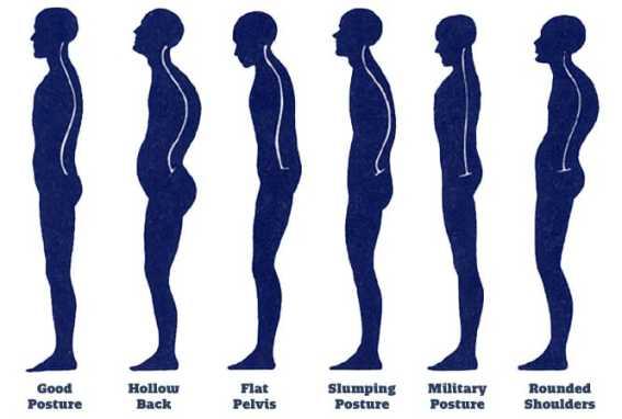 Image result for bad body posture