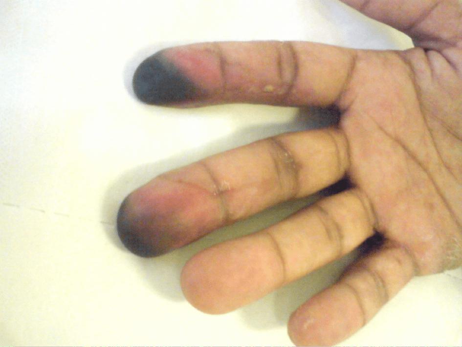 Artérites au cannabis : trois nouveaux cas Figure 3