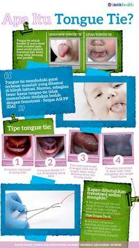 Infografis 4 Tipe Tongue Tie Pada Bayi