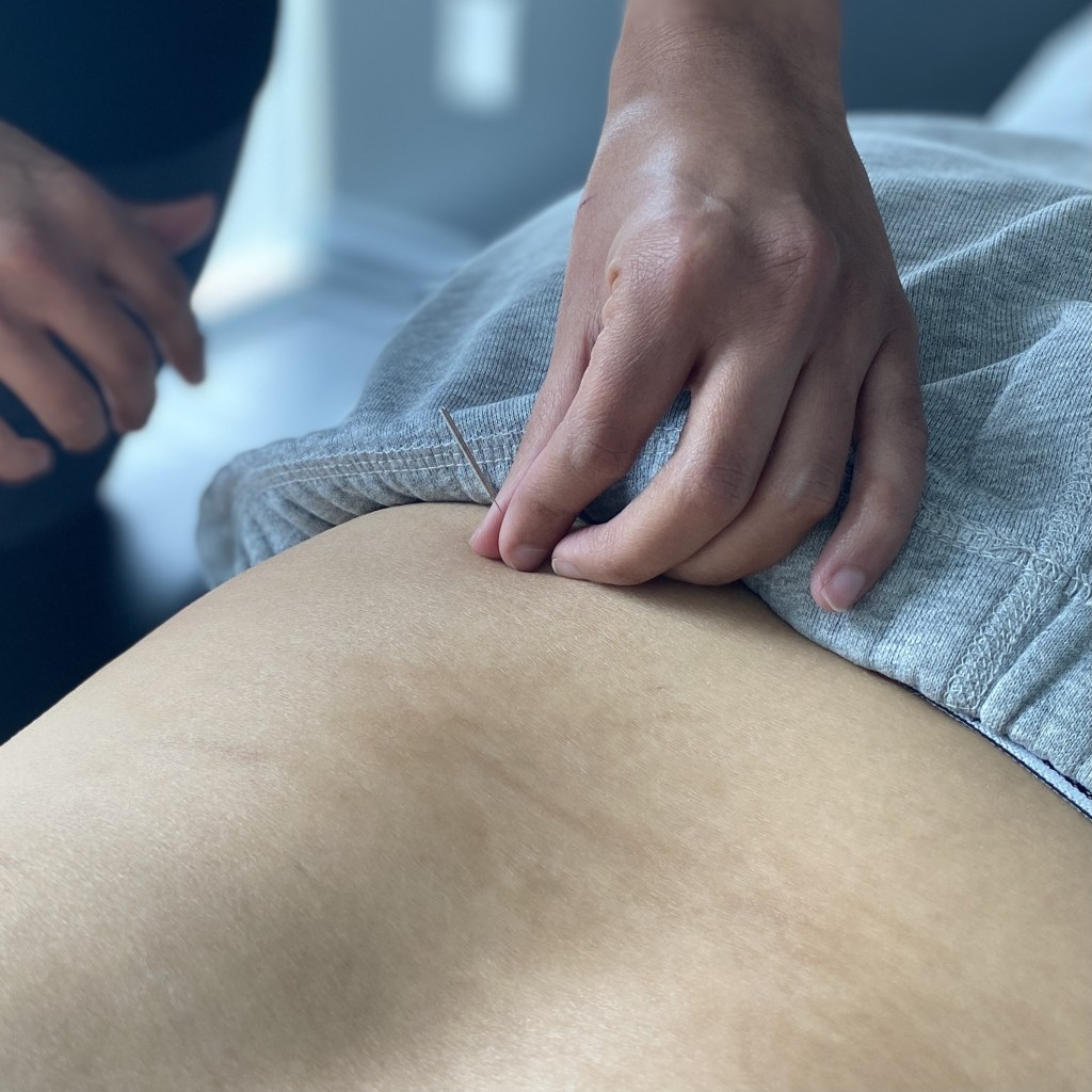 Acupuncture Scarborough Axis Therapy
