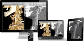 aycan workstation mobile teleradiology iPad app