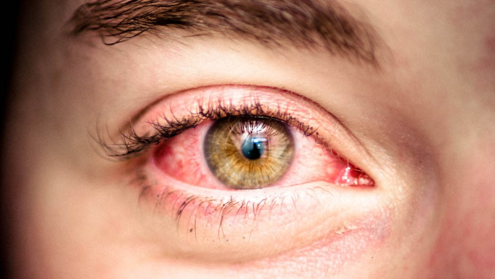 Redness of eye Image source -- https://www.flickr.com/photos/hellyeahphotography/5317611080/sizes/l