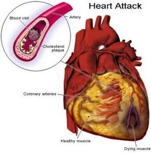 Cholesterol high