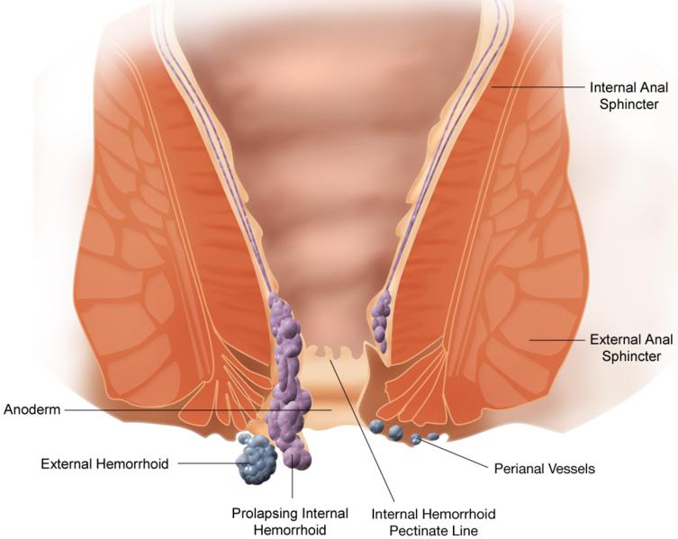 Ksharsutra for anorectal disease