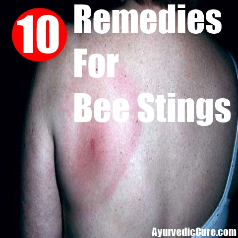 10 Remedies For Bee Stings