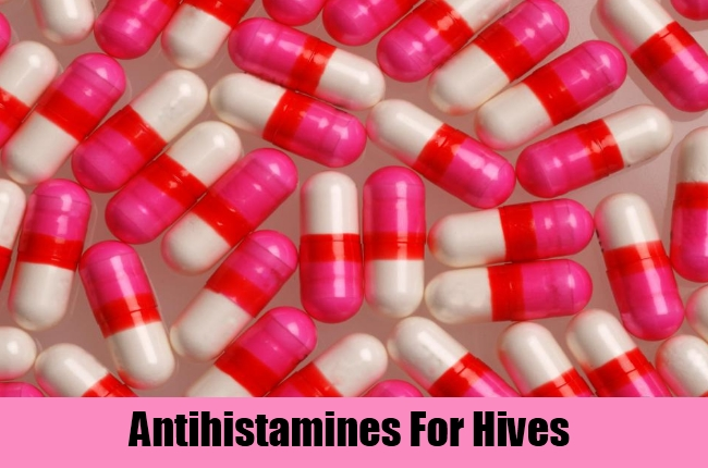 Antihistamines For Hives
