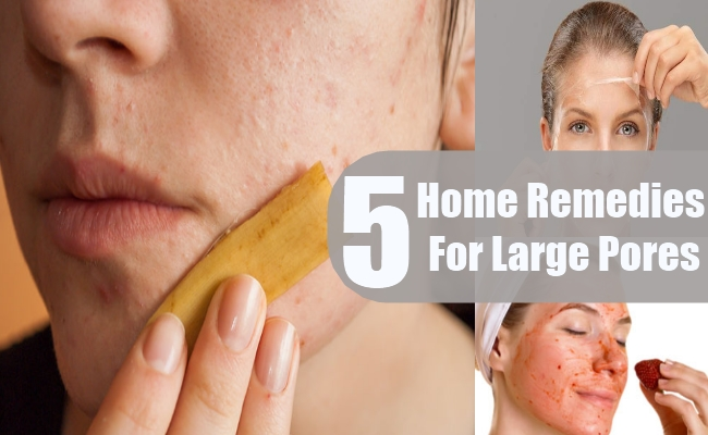 Home Remedies For Large Pores